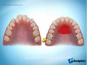 Nance Dental Appliance: The Brush Stop Dental in Carlsbad, CA near Del Mar