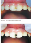 Silver Diamine Fluoride || The Brush Stop Pediatric Dentistry and Orthodontics