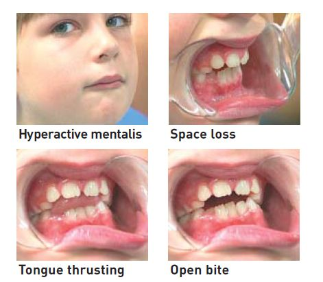 Myobrace || The Brush Stop Pediatric Dentistry in Carlsbad, CA 92009