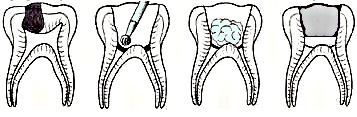 Pulpotomy: Children's dentist in Carlsbad, CA -  The Brush Stop Pediatric Dentistry