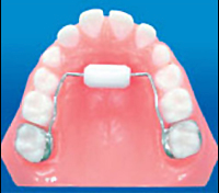 Habit Breaking Oral Dental Appliance : Pediatric Dentist in Carlsbad, CA - The Brush Stop