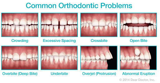 Phase I orthodontics and Braces in Carlsbad, CA 92009